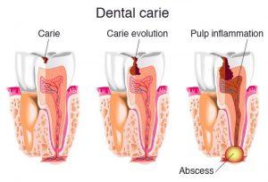 مراحل خراب شدن دندان و عفونت و آبسه
