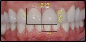 نسبت طلایی دندان ها