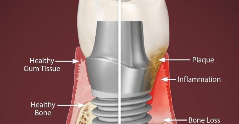 عفونت دندان ایمپلنت شده یا عفونت ایمپلنت دندان یا پری ایمپلنتایتیس