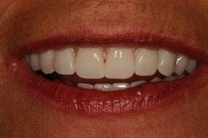 پس از ایمپلنت دندانی