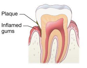 جراحی لثه می تواند به درمان بوی بد دهان کمک شایانی کند