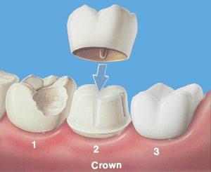 پوشش دندان