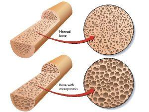 پوکی استخوان بافت استخوانی