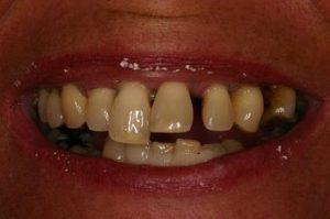 پیش از ایمپلنت دندانی