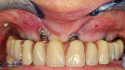 عفونت در بافت اطراف لثه با روش ایمپلنت بدون جراحی لثه وجود ندارد