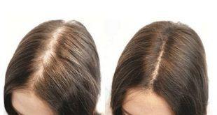 ریزش مو و کچلی موضعی سر را به کمک طب سوزنی سنتی چین درمان کنید