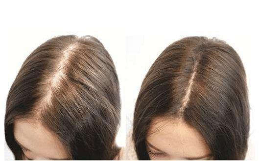 درمان ریزش مو و تقویت مو و رفع بیماری آلوپسی با طب سوزنی