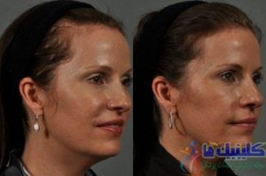 hair-transplant-before-575259-619016
