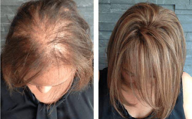 درمان ریزش مو و کاهش شدید کم شدن موها