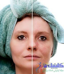 عوارض قرص آکوتان با لیزر مو های زائد