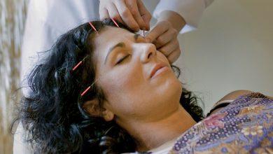 Photo of ریزش مو و کچلی موضعی سر را با طب سوزنی و سنتی چین درمان کنید