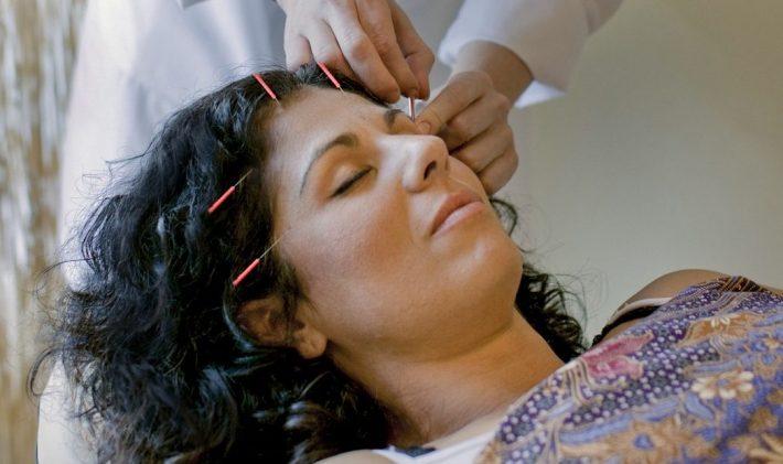 ریزش مو و کچلی موضعی سر را با طب سوزنی و سنتی چین درمان کنید