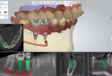 جراحی ایمپلنت دندان چطور انجام میشود؟