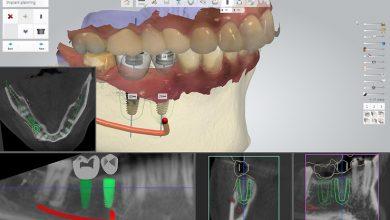 Photo of جراحی ایمپلنت دندان پیشرفته چطور انجام میشود؟
