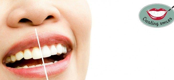نتایج سفید کردن دندان یا بلیچینگ دندان با لیزر قطعی است