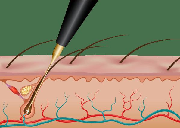 الکترولیز موهای زائد برای از بین بردن دائمی آن ها