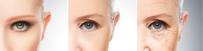 سن و جنسیت در تعیین تعداد جلسات لیزر موهای زائد