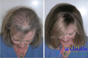 hair-loss-solutions