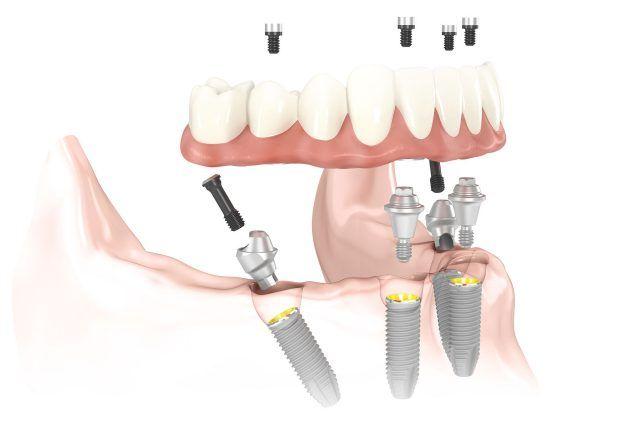درمان لقی دندان مصنوعی با روش all on 4 یا 4 ایمپلنت دندانی
