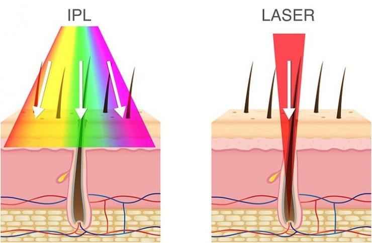 تفاوت لیزر موی زائد با نور شدید پالسی در آی پی ال چیست و کدام موثرترند؟