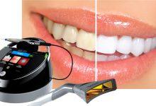 تصویر بلیچینگ دندان و سفید کردن دندان با لیزر دندانپزشکی در زمان کم بدون عوارض