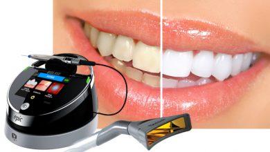 Photo of بلیچینگ دندان و سفید کردن دندان با لیزر دندانپزشکی در زمان کم بدون عوارض