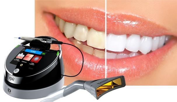بلیچینگ دندان با لیزر و سفید کردن دندان با لیزر دندانپزشکی در زمان کم بدون عوارض