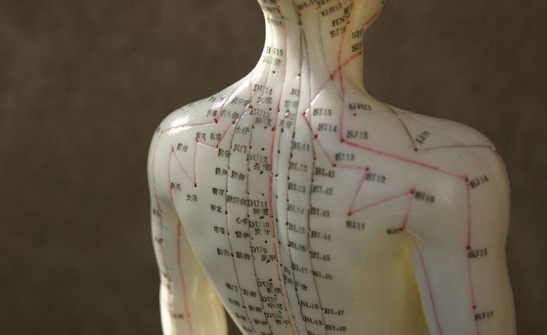 نقاط طب سوزنی در بدن