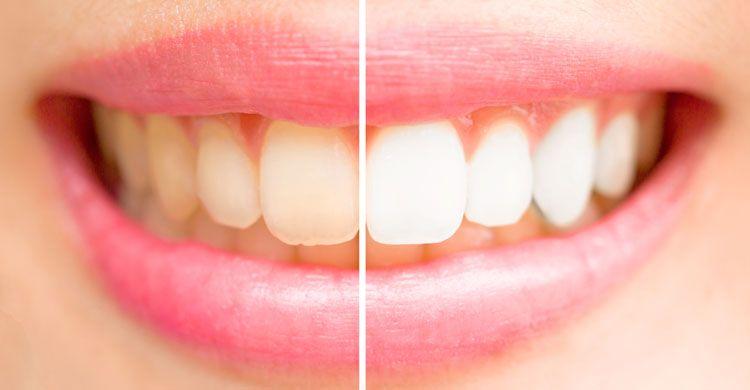 بلیچینگ دندان با لیزر یا سفیدک کردن دندان ها با لیزر دندانپزشکی
