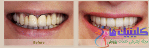 استفاده از ایمپلنت دندانی برای رفع مشکلات دندان مصنوعی