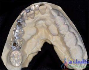 استنت ایمپلنت دندان