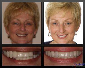 ایمپلنت دندانی زنان