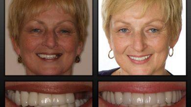 Photo of ایمپلنت دندانی برای کسانی که پوکی استخوان دارند بهترین گزینه جایگزینی دندان است