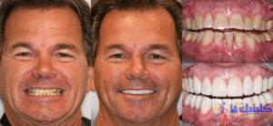 ایمپلنت دندانی طراحی لبخند