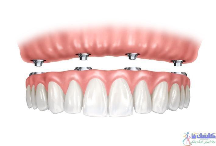 ایمپلنت دندان مصنوعی