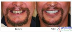 کاربردهای ایمپلنت دندانی