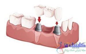 بریج دندانی ثابت