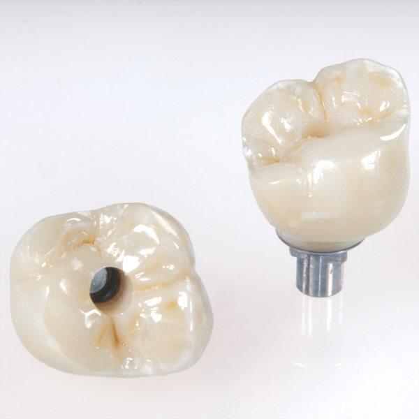 تاج ایمپلنت دندانی از جنس پورسلین و بهترین روش جایگزینی دندان