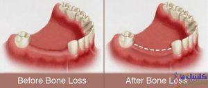 تحلیل رفتن بافت استخوانی در محل افتادن دندان