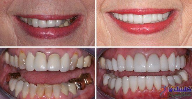 جایگزین دندان با ایمپلنت