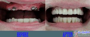 اولین مرحله جایگزین دندان با ایمپلنت