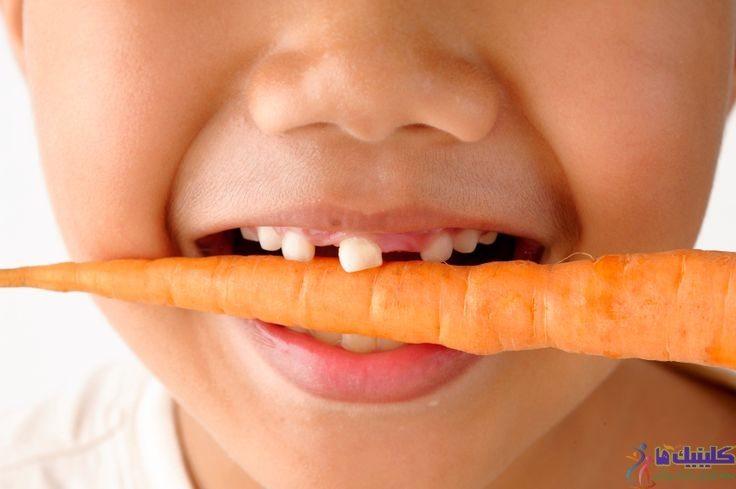 خوردن غذا با دندان لق شدن دندان