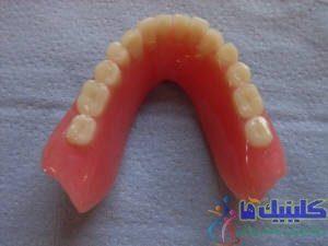 دندان مصنوعی پایین