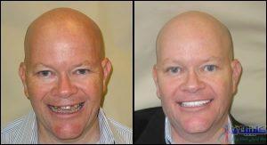 رفع مشکلات دندان مصنوعی با کاشت ایمپلنت