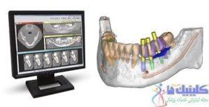 روش جراحی هدایت شده با تصویر ایمپلنت