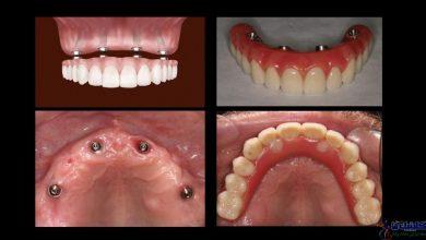 Photo of درمان لقی دندان مصنوعی کامل با all on four چیست و چه مزیتهایی دارد؟