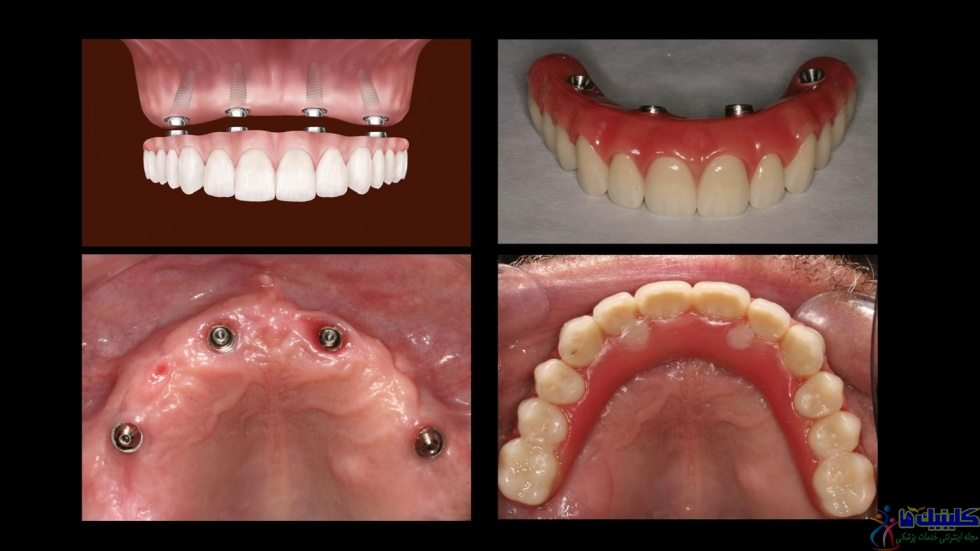 درمان لقی دندان مصنوعی با روش 4 ایمپلنت