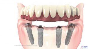 روش 4 ایمپلنت برای ثابت کردن دندان مصنوعی