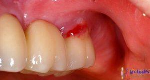 عفونت ایمپلنت دندان و لثه ای که خون ریزی می کند