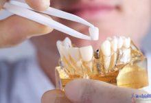 متخصص ایمپلنت دندانی چه کاری باید انجام دهد